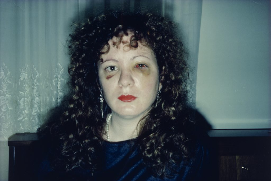 Nan One Month After Being Battered, 1984.